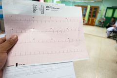 Heart analysis, electrocardiogram graph ECG in hand doctor at the hospital.  royalty free stock photo