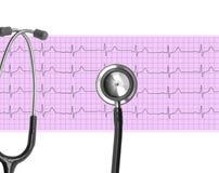 Heart analysis, electrocardiogram graph (ECG) Royalty Free Stock Photos