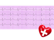 Heart analysis, electrocardiogram graph and red heart (ECG) Royalty Free Stock Photos