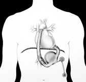 Heart - Assist System Stock Photos