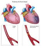 Heart attack. Anatomy of a heart attack, eps8 Stock Images