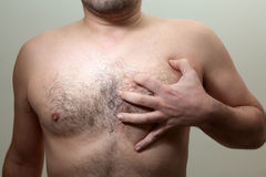 Heart attack. Sudden chest pain. Sign of heart attack Royalty Free Stock Image
