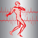 Heart Attack. Illustration of a figure in pain with a electrocardiagraph wave Royalty Free Stock Photography