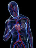 Heart attack. 3d rendered illustration of a transparent body with vascular system Stock Photography