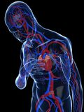 Heart attack. 3d rendered illustration of a transparent body with vascular system Royalty Free Stock Photos