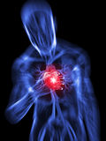 Heart attack. 3d rendered illustration of a transparent body with vascular system and highlighted heart Royalty Free Stock Image