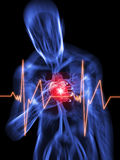 Heart attack. 3d rendered illustration of a transparent body with vascular system and highlighted heart Royalty Free Stock Photography