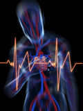 Heart attack. 3d rendered illustration of a transparent body with vascular system and highlighted heart Royalty Free Stock Images