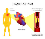 Heart attack. Anatomy of a heart attack. Diagram of a myocardial infarction. Atherosclerotic plaque in a coronary artery. Thrombus  totally occluding the artery Stock Photography