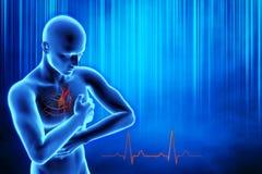 Heart attack concept. 3d illustration of human internal organs, heart, DNA vector illustration