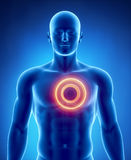 Heart attack concept with glowing circle Royalty Free Stock Images