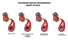 Heart attack, Coronary artery disease Royalty Free Stock Images