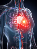 Heart attack Royalty Free Stock Photography