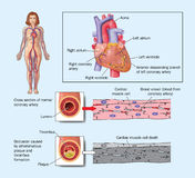Heart attack due to blocked artery. Drawing of the heart showing coronary arteries blocked by atheroma, plaque and thromosis Stock Photos
