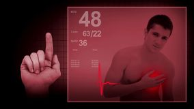 Heart attack with EKG sign stock footage