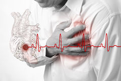 Heart attack and heart beats cardiogram Stock Photos