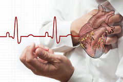 Heart attack and heart beats cardiogram Royalty Free Stock Photos