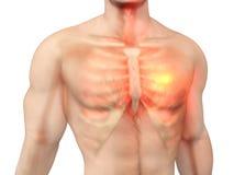 Heart Attack in a male Body. 3D visualization symbolizing a heart attack in a male Chest Stock Photography