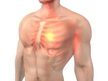 Heart Attack in a male Body. 3D visualization symbolizing a heart attack in a male Chest Royalty Free Stock Image