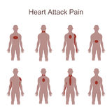 Heart Attack Pain Location Royalty Free Stock Images