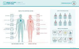 Heart attack signs and warnings. Heart attack symptoms on men and women infographic, pain location and prevention tips stock illustration