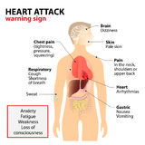 Heart attack symptoms. Heart Attack Signs and Symptoms. Human silhouette with highlighted internal organs. warning sign vector illustration