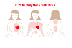 Heart attack vector infographic. Heart attack symptoms. How to recognize a heart attack Stock Photo