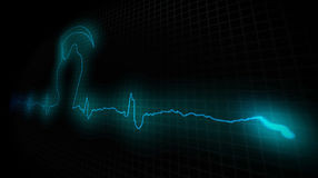 Heart Attask. Cardiogram of a diseased heart Royalty Free Stock Photos