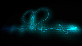 Heart Attask. Cardiogram of a diseased heart Stock Photography