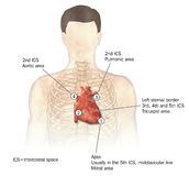 Heart auscultation. Areas of the heart used for auscultation (listening for heart sounds Stock Image