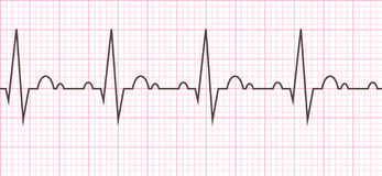 Heart beat. Cardiogram. Cardiac cycle Stock Image