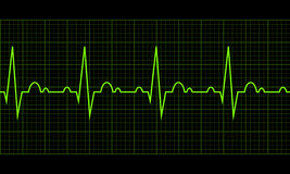 Heart beat. Cardiogram. Cardiac cycle Stock Photography