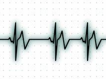 Heart beat on ECG screen. ECG screen showing heart beats Stock Image
