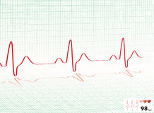 Heart Beat Green Grid Royalty Free Stock Photos