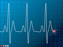 Heart beat medical dark Royalty Free Stock Photos