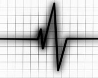 Heart beat on monitor Stock Images