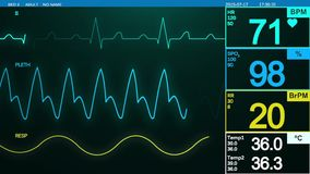 Heart beat monitor stock video