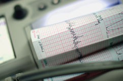 Heart beat monitoring equipment with graph Stock Images