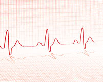 Heart beat red grid Stock Images