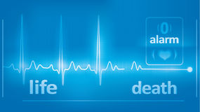Heart beats cardiogram, and asystole on the monitor. Stock Photography