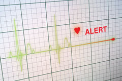 Heart beats cardiogram on the monitor. Stock Photo