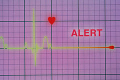 Heart beats cardiogram on the monitor. Flat line alert on a heart monitor royalty free stock photos