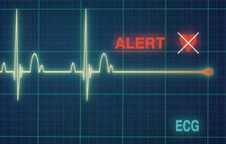 Heart Beats Cardiogram On The Monitor. Royalty Free Stock Photos