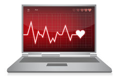 Heart beats - electrocardiogram monitor Royalty Free Stock Photography