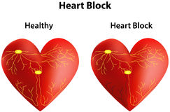 Heart Block Stock Photos