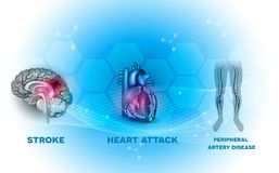 Heart and blood vessel diseases stock illustration