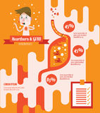 Heart Burn and GERD(Gastroesophageal Reflux Disease). Flat info graphics design. vector illustration Stock Images