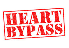 HEART BYPASS Stock Image