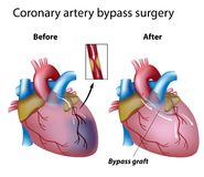 Heart bypass surgery. Before and after heart bypass surgery with artery graft indicated, eps8 Stock Image