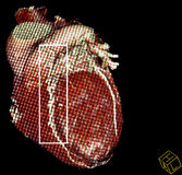 Heart bypass surgery. CT-scan reconstruction Stock Images